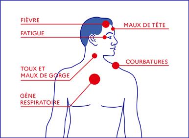 symptomes coronavirus